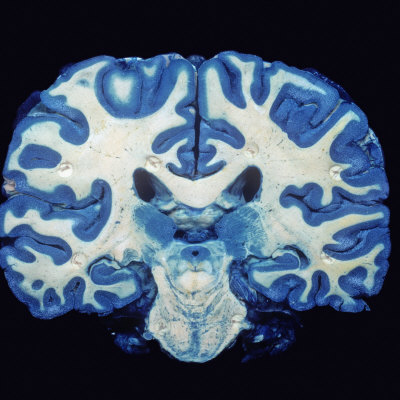 Brain, Coronal Section, Grey Matter Stained Blue