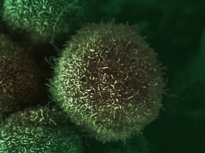 Human Pancreatic Cancer Cell, Cancer Research UK