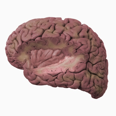 Human Cerebrum with Section Removed