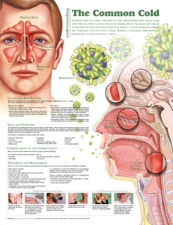 Understanding the Common Cold Anatomical Chart 2nd Edition Poster Print