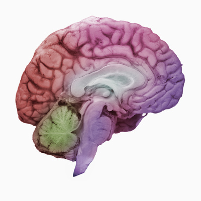 mid-sagittal brain section, with lobes in different colors
