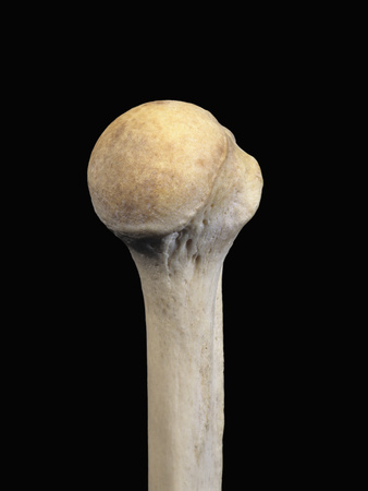 Upper Limb Bone, Left Humerus Proximal End, Lateral Lip of Intertubular Groove Medial Side