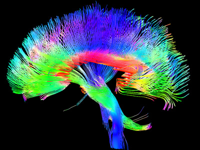 brain and brainstem with colored lines (like fiber optic) showing different pathways in the brain