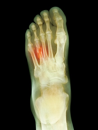 Buy Fractured Foot, X-ray at AllPosters.com