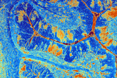 Brown nerve pathways and yellow cells on a background of dark blue and light blue cerebellar tissue