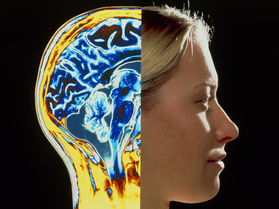Profile view of a pretty young blonde woman: the front of her head shows her face, the back shows MRI scan of brain
