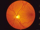 Normal Retina View Thru Fundus