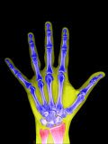 X-Ray of a Human Adult Hand