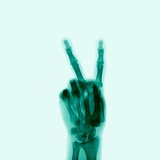 X-Ray of Hand Doing Peace Sign