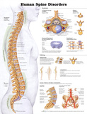 Buy Human Spine Disorders Anatomical Chart Poster Print at AllPosters.com