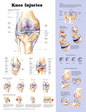 Buy Knee Injuries Anatomical Chart Poster Print at AllPosters.com