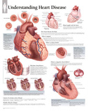 Laminated Understanding Heart Disease Educational Chart Poster
