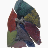 Resin Cast of Human Lung Showing Each Lobe in Different Color