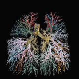 Resin Cast of the Human Lungs and Bronchial Tree
