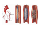 This Stock Image Reveals an Orientation View of the Arteries of the Heart and Three Enlargements