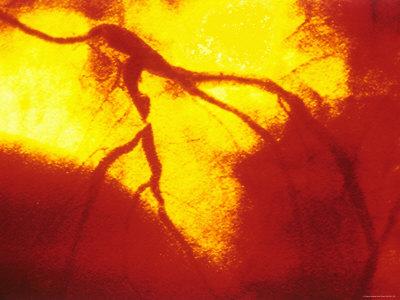 Coronary Angiogram Left Anterior Decending Artery Stretched Canvas Print