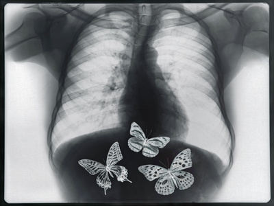 X-ray of butterflies in the stomach Stretched Canvas Print