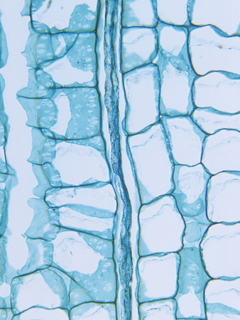 Longitudinal Section of a Milkweed Stem Showing the Latex Tube (Asclepias), a Dicot, LM X65 Stretched Canvas Print