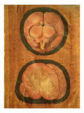 Hieronymus Fabricius ab Aquapendente