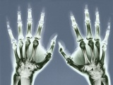 X-ray of Hands Papier Photo