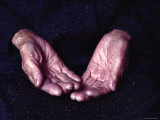 Close-Up of an Old Woman&#39;s Hands  Japan
