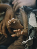 Close View of the Twisted Feet of a Starving Child