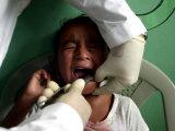 A Girl  6  Cries as Dentist Allan Castellanos Removes a Molar Toot