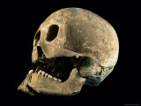 A Skull with a Bronze Arrowhead Embedded in the Bone
