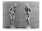 Statuette of an Old Woman with Parkinson's Disease  After 1895