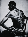 The Scarred Back of a Male Slave  c1855