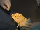 A Foot Gets Sewn Back up with Stitches after Surgery  Washington  District of Columbia