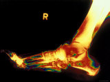 X-Ray of Foot Right Foot