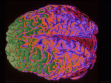 Human Brain Colorized