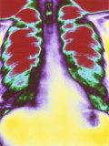Lungs Chest X-Ray