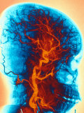 Angiogram  Human Head  Vessels