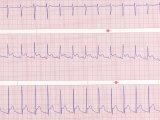 ECG Showing Sinus Tachycardia