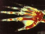 Digitized X-Ray of Normal Human Hand