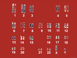 Normal Human Karyotype Chromosomes in Pairs