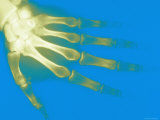 Xray of Normal Adult Hand Left Hand Dorsal View