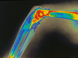 Digitized X-Ray of Normal Human Elbow
