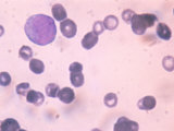 Acute Granulocytic Anemia Immature White Blood Cells