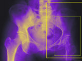 Xray Colorized Female Hip Pelvis Osteoporosis