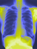 Normal Chest X-Ray with Spine and Ribs