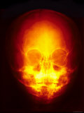 X-Ray Skull Sinuses Frontal View