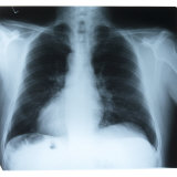Black and White X-Ray Photograph of Ribcage of Person Papier Photo