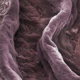 Surface of the Human Vagina