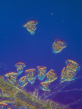 Living Vorticella Protozoan