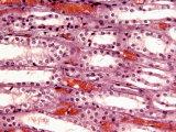 Tubules in the Kidney Medulla
