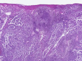 Human Skin Section of a Patient with Malignant Melanoma