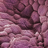 A Scanning Electron Micrograph of the Epithelial Cell Lining of the Bladder